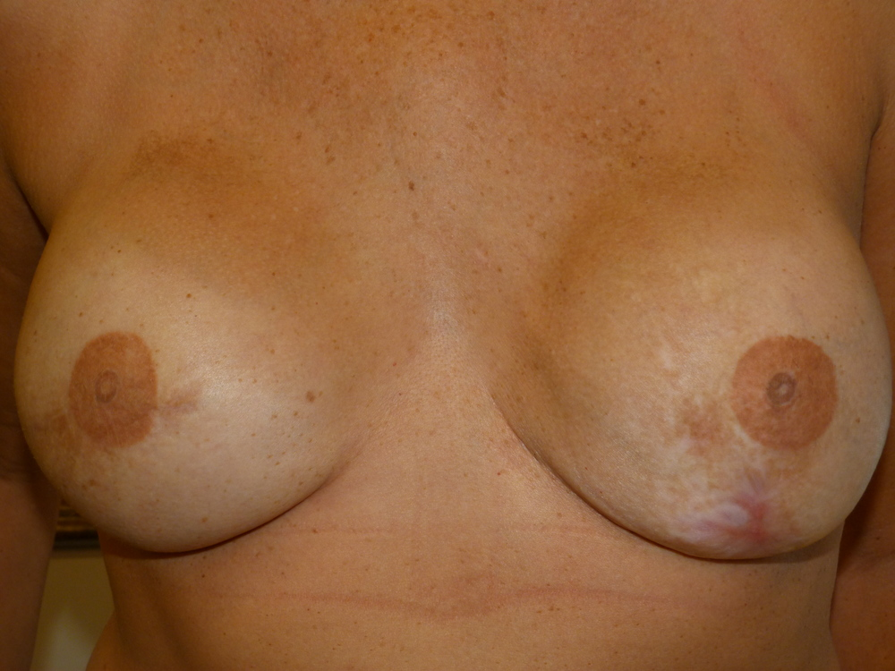 Areola 2 fully healed 6 weeks  3-D nipple.JPG