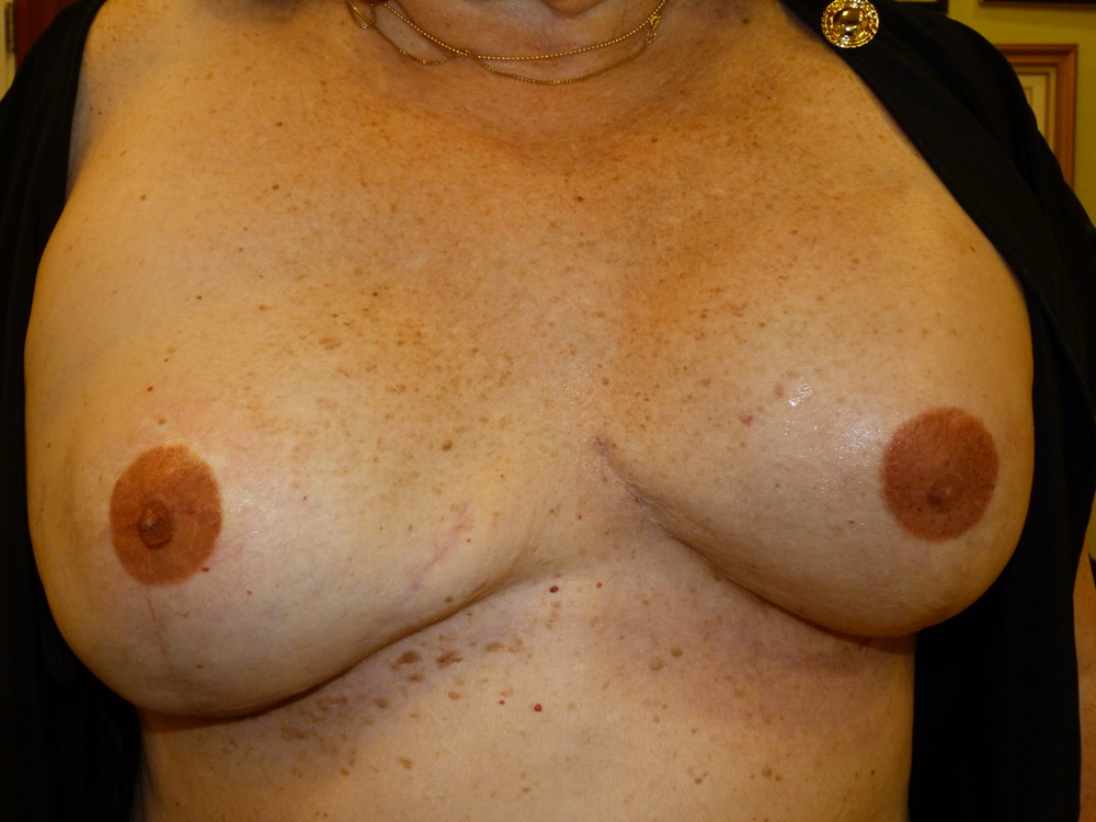 Areola 3 immediately after.JPG