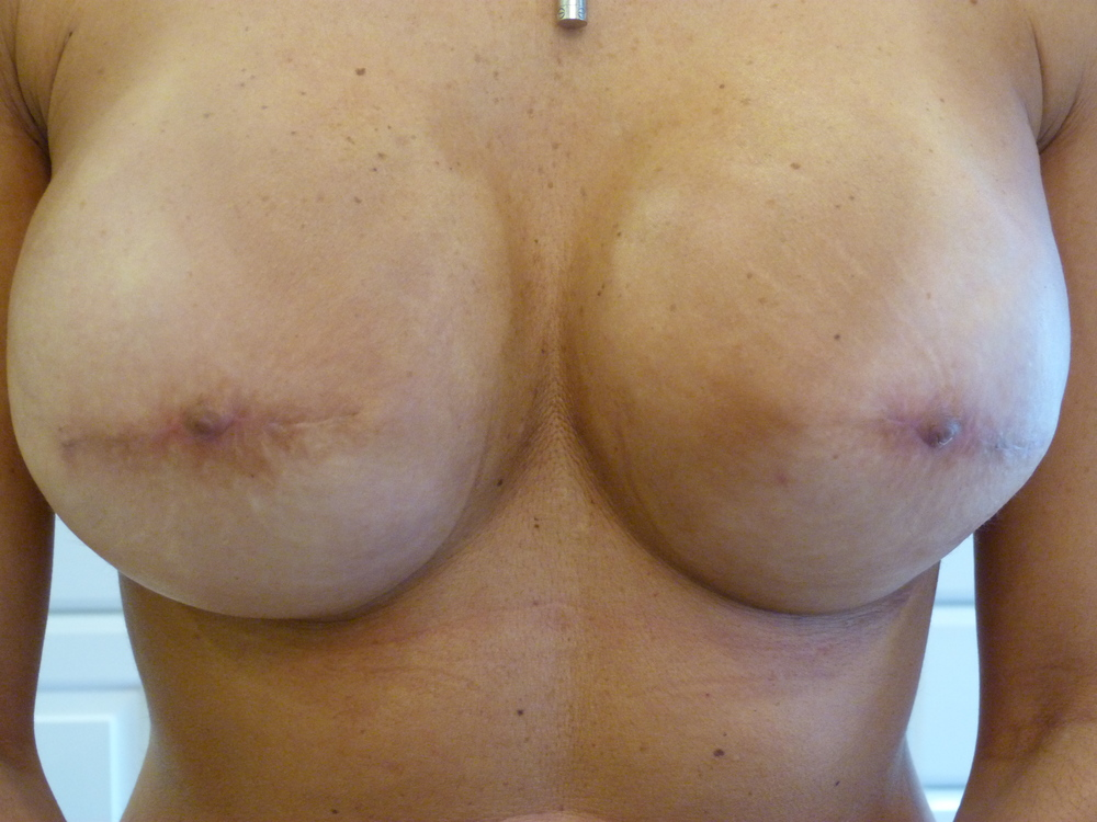 Areola 5 Before.JPG