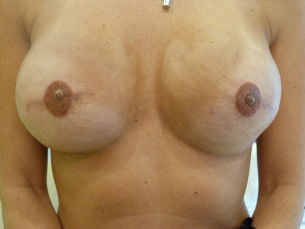 Areola 5 Immed. after.JPG