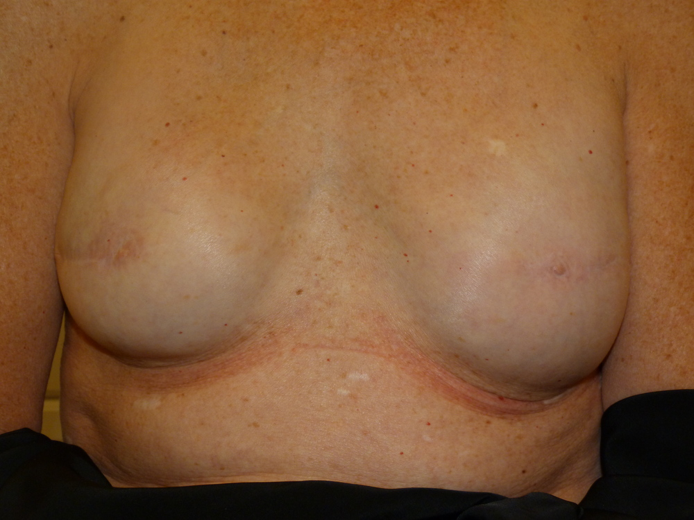 Areola 6 Before.JPG