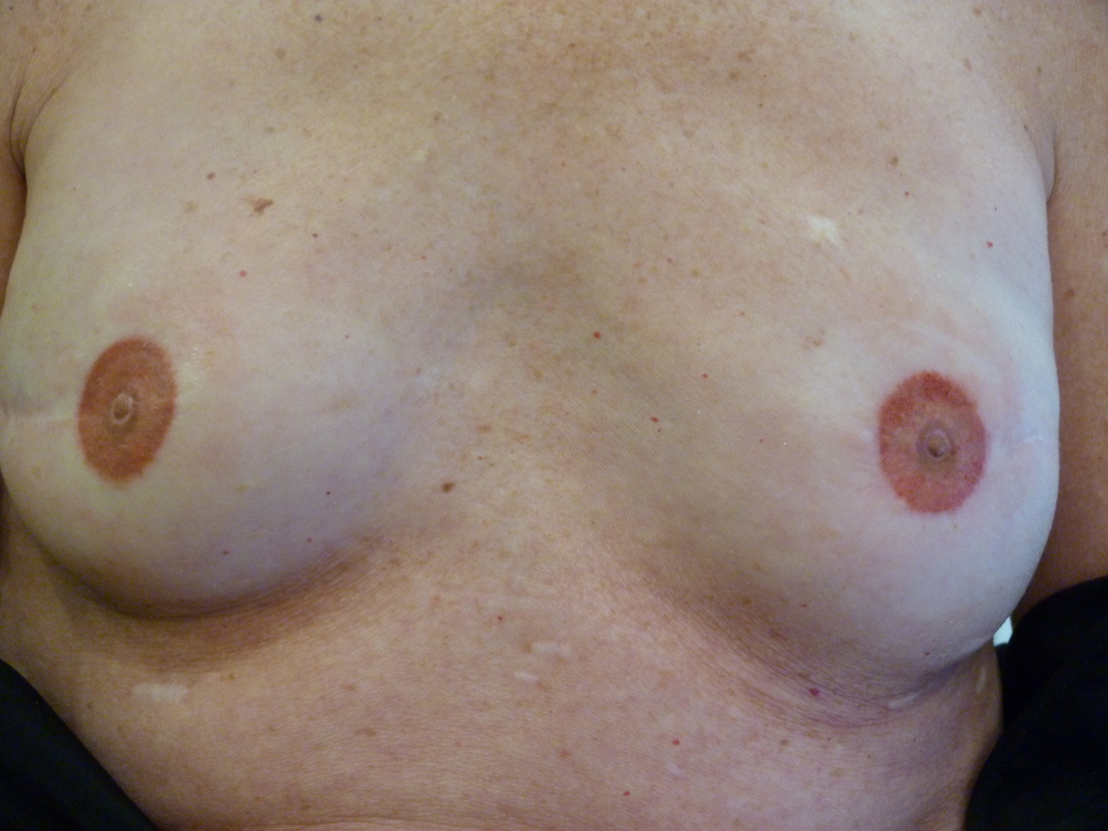 Areola 6 Immed. After.JPG