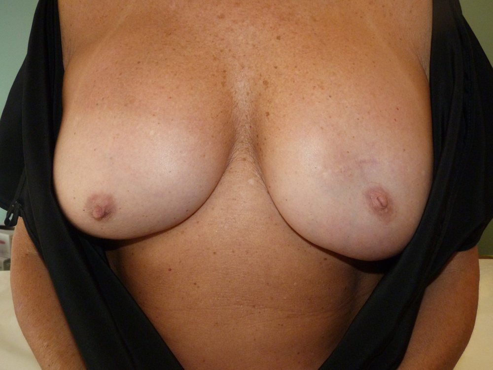 Areola 7 Before.JPG