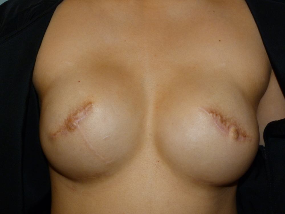 Areola 8 Before.JPG