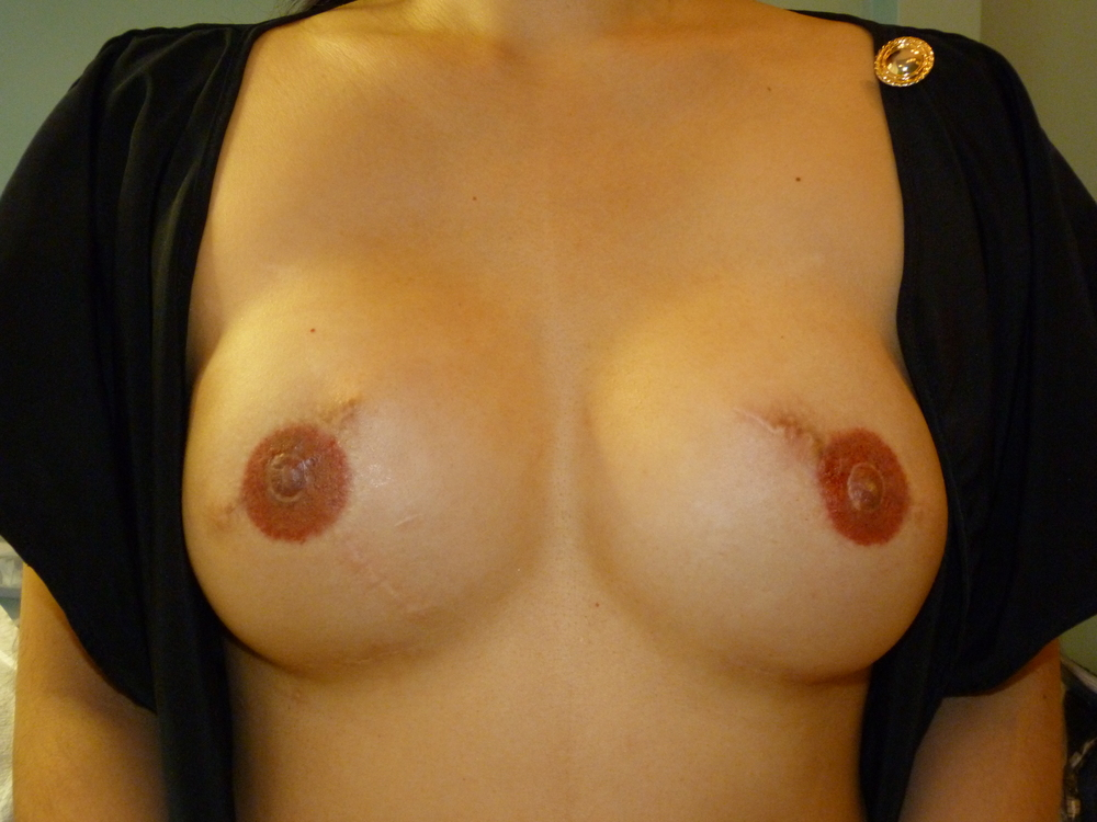 Areola 8 Immed After.JPG