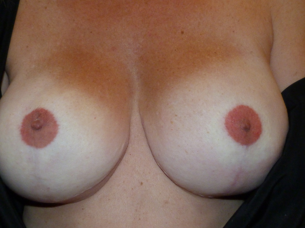 Areola 11 After .JPG