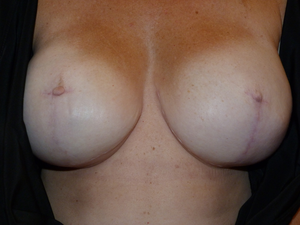 Areola 11 Before.JPG
