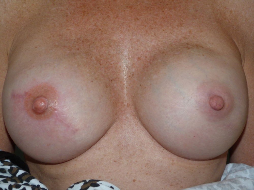 Areola 12 After.JPG