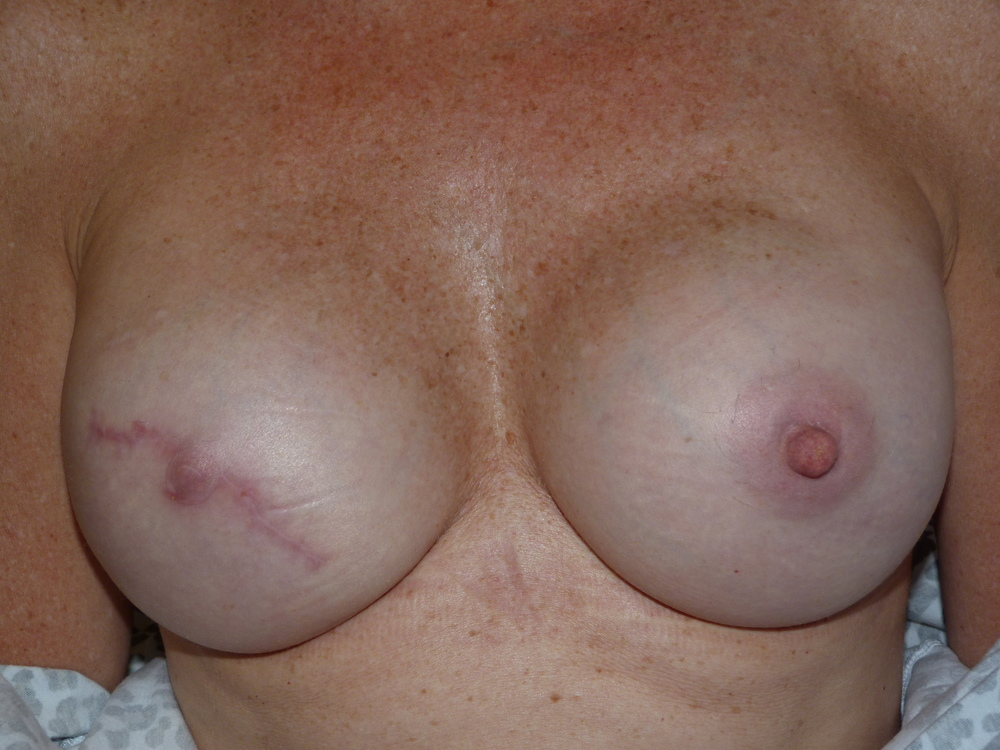 Areola 12 Before.JPG