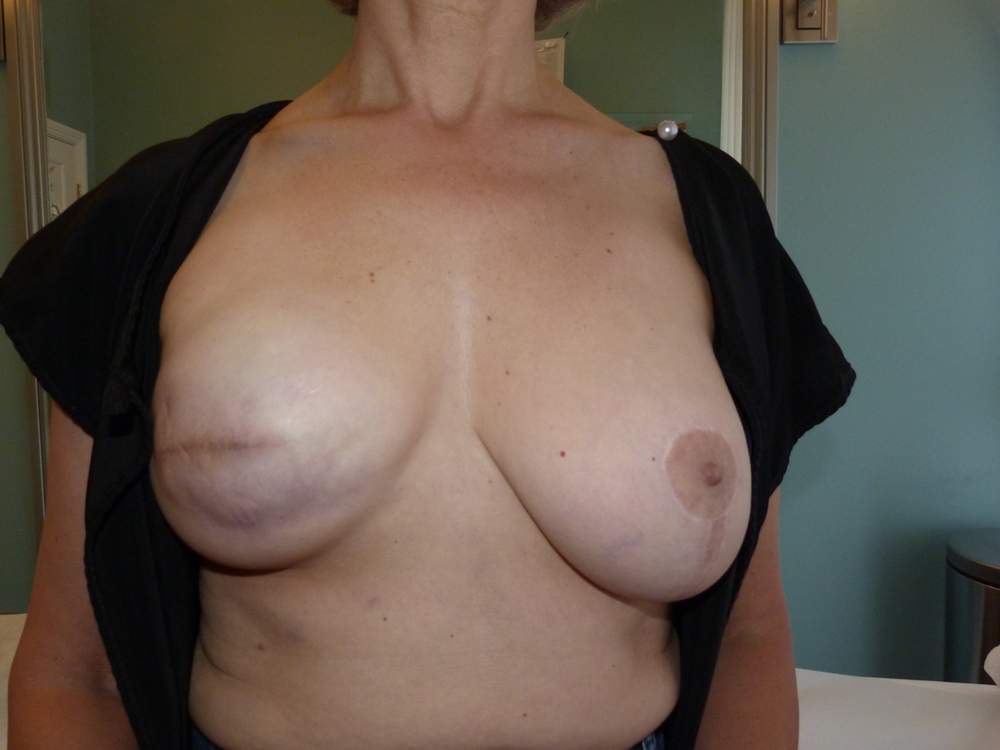 Areola 13 Before.JPG