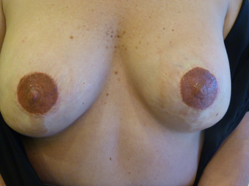 Partial areola and scar blend 1 after.JPG