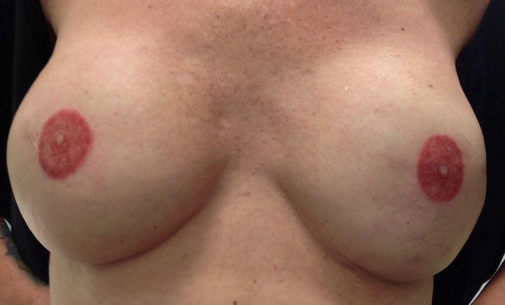 after 3D areola.jpg