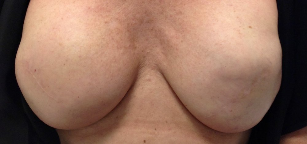 Before 3D areola.jpg