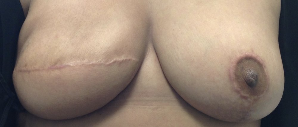 areola 3D with keloid.jpg