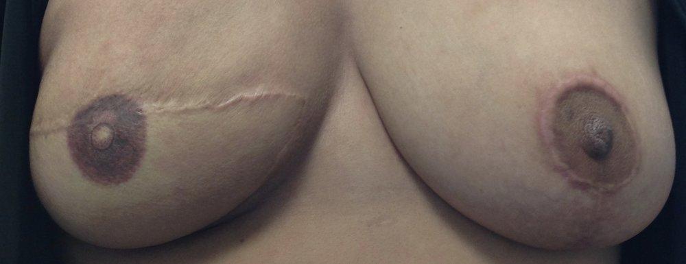 areola scar with keloid.jpg