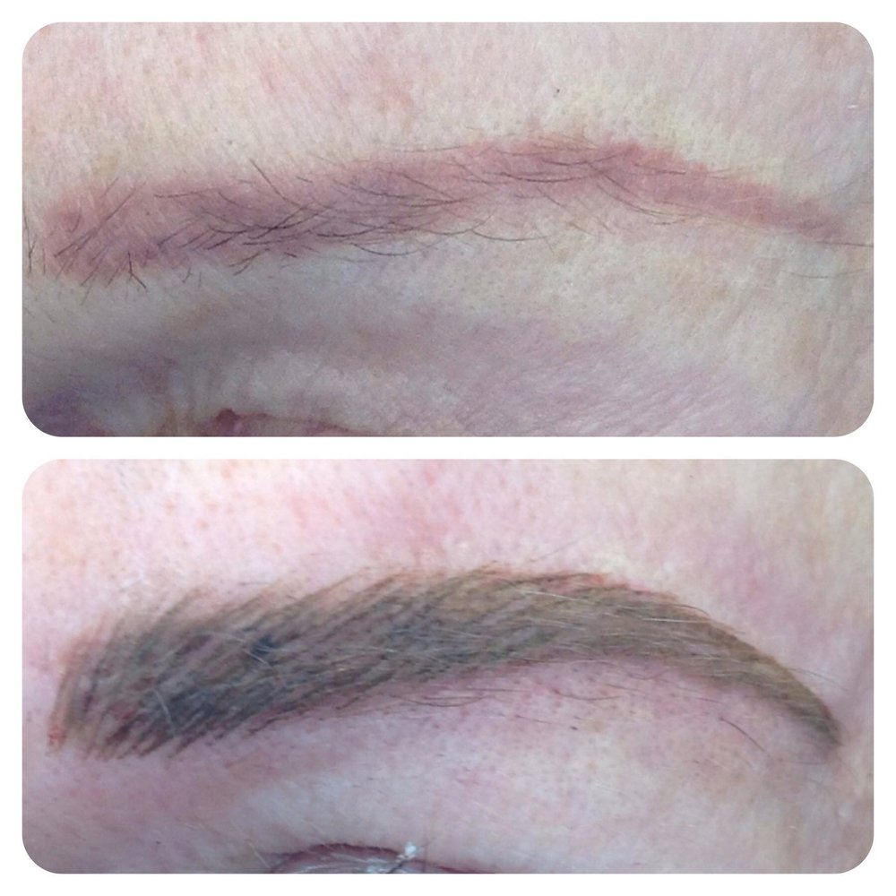Previously tattooed brows, solid shading done by another technician. Color correction procedure was performed and six weeks later the target color in a hair stroke technique was applied.