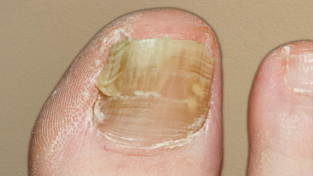 Toenail Problems — Family Foot Care