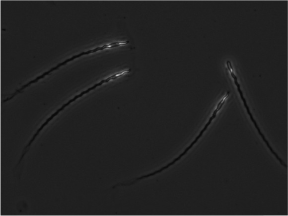 Hihi sperm x400 Image Credit Helen Taylor