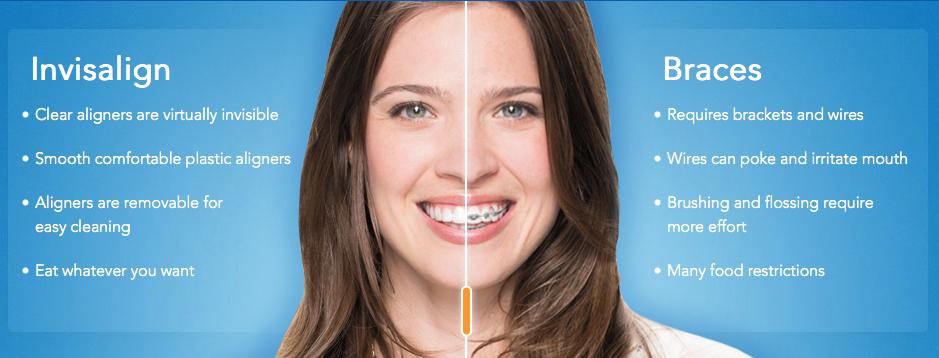 Invisalign — Impressions Orthodontics