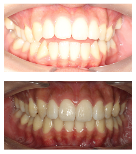 Patient treated with Invisalign for anterior open bite in 15 months