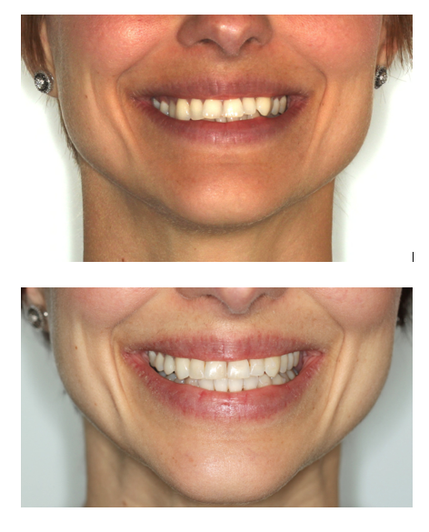 Patient treated with Invisalign for smile broadening and alignment in 7 months.