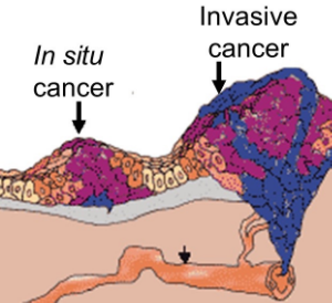 melanoma-in-situ