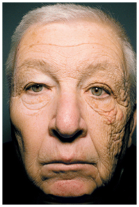 One-Sided Skin Aging Sun Damage