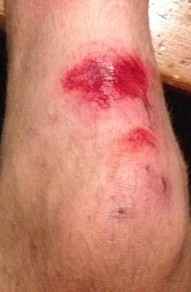 cycling road rash wound care bonus edition pedal fit