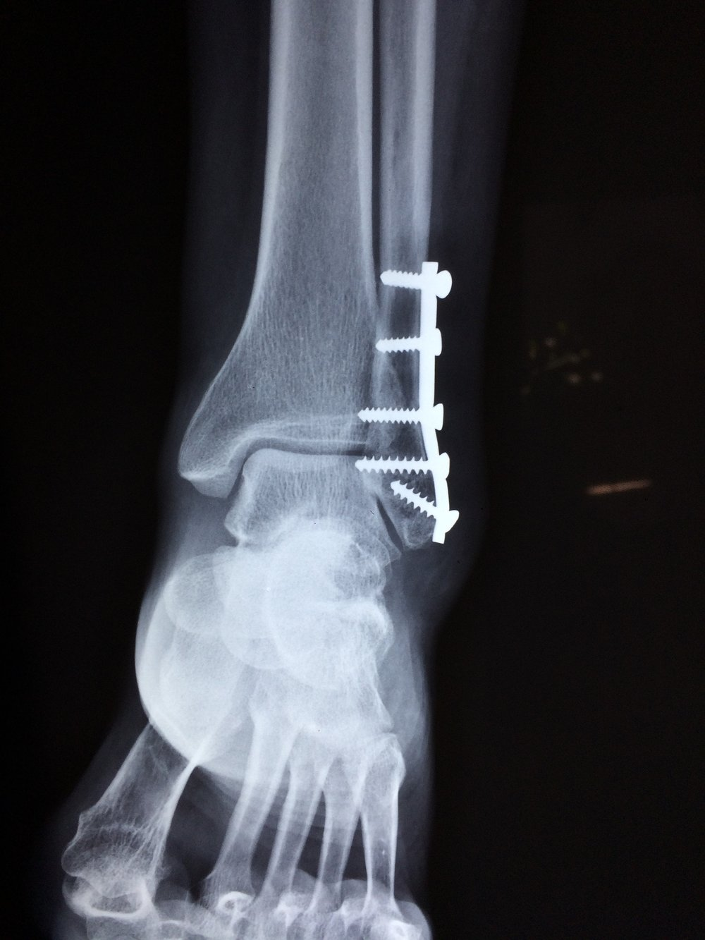 Una radiografía de un tobillo roto.