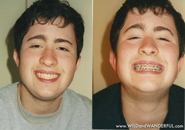 2001 - braces before and after.jpg