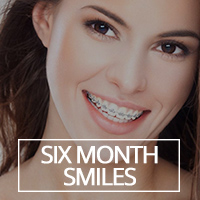 Six Month Smiles® Adult Orthodontics