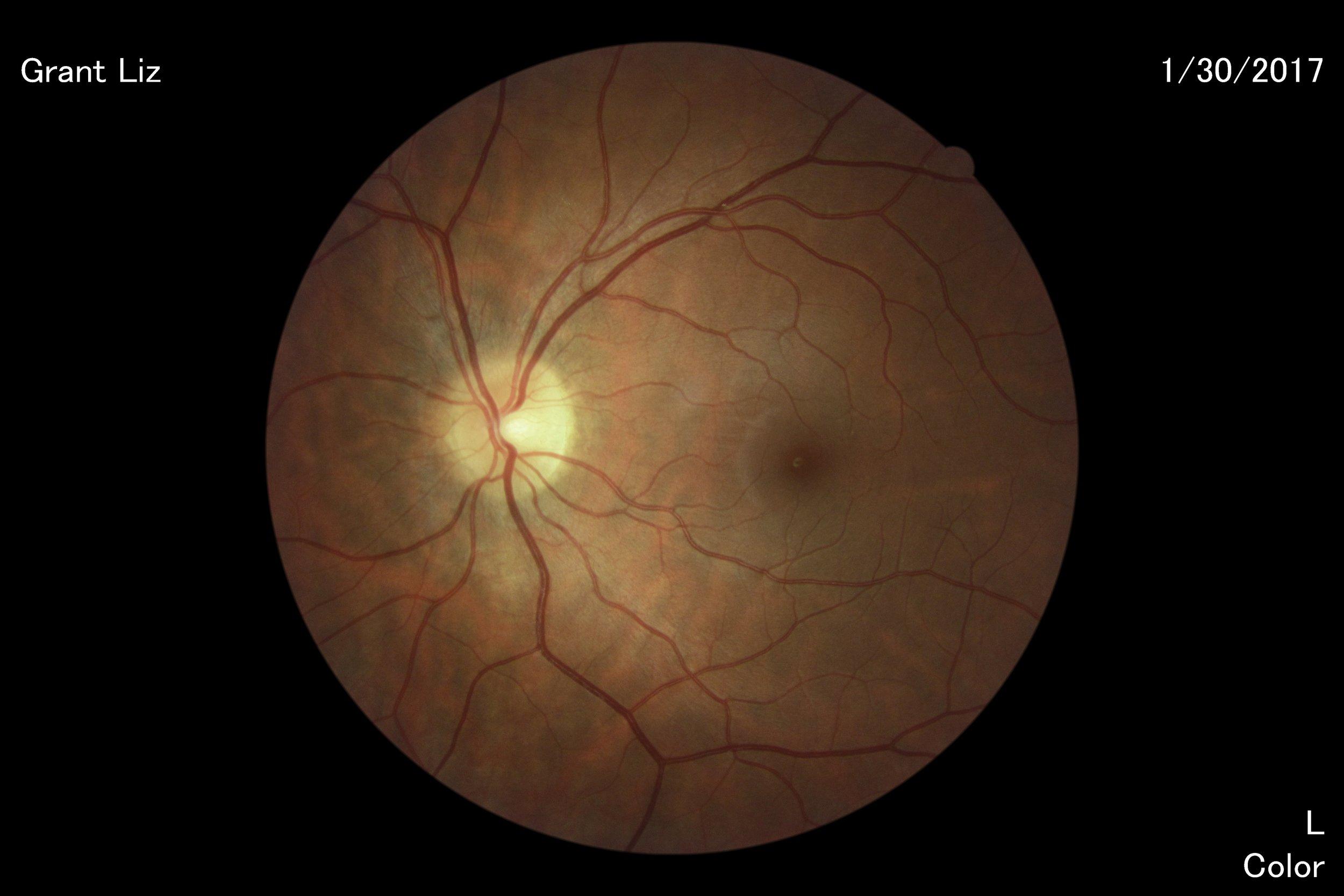 optometrist appt 2