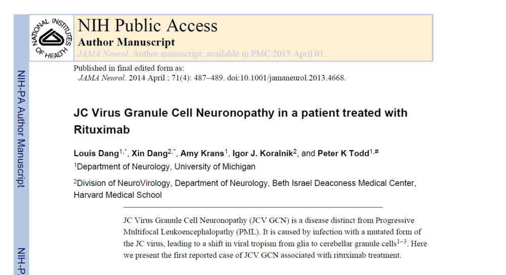JC Virus Granule Cell Neuronopathy in a patient treated with Rituximab