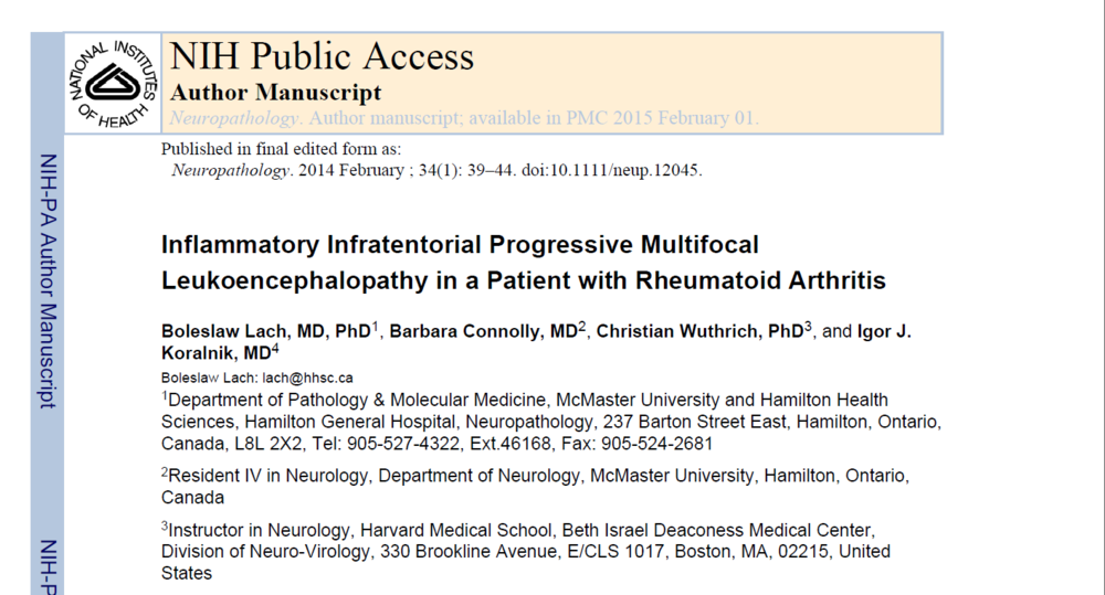 Inflammatory Infratentorial Progressive Multifocal Leukoencephalopathy in a Patient with Rheumatoid Arthritis
