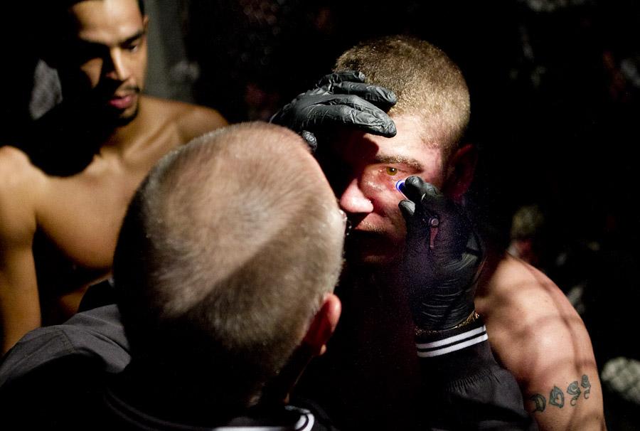 cage fight concussion