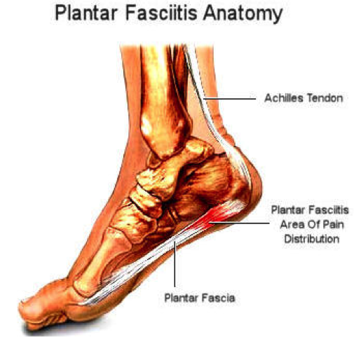 Pin on Foot pain | 481x505