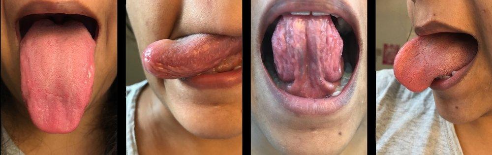 tongue2.jpg