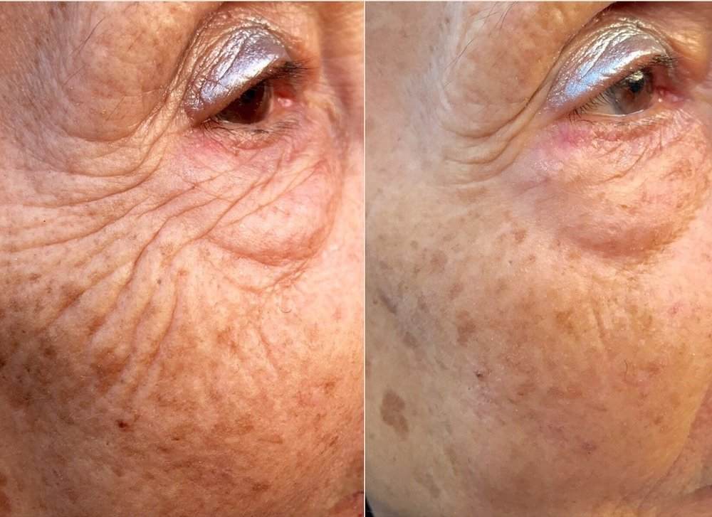 Applicazione INSTANTLY Ageless