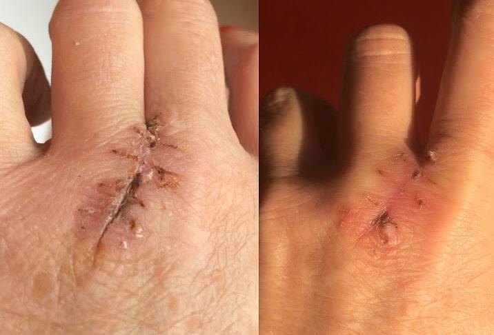 Cicatrice dopo pochi giorni di applicazione Siero LUMINESCE™