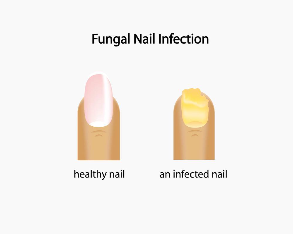 north jersey fungal toenails
