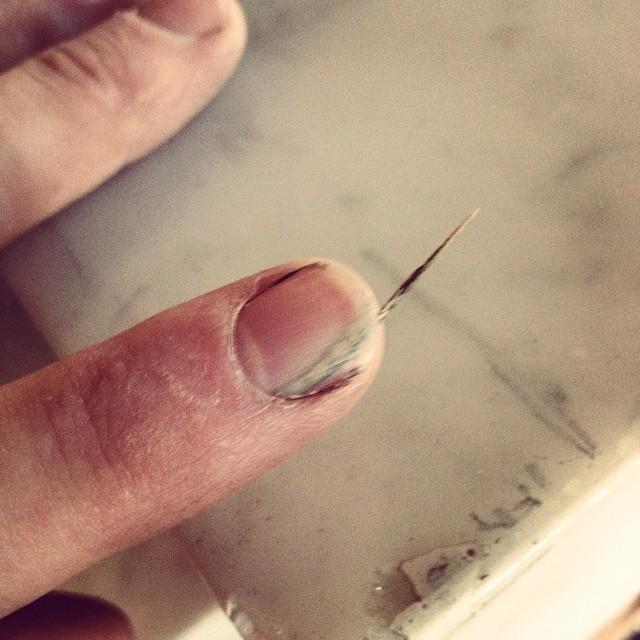Got a little splinter at work today, no big deal. #workmanscomp