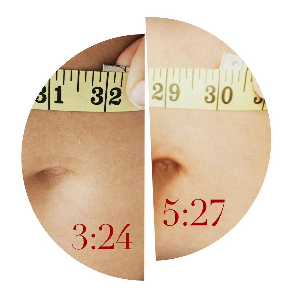 picture above shows the same day results of a nushape lipo-treatment. measurements were taken at the same point- one before a twenty minute treatment and one two hours after, while following treatment protocol (increasing water intake, following treatment with twenty minutes of exercise).  results vary- follow recommended protocol for best results!