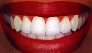 Archer Dental Rosedale, Voted Best Dentist in Toronto