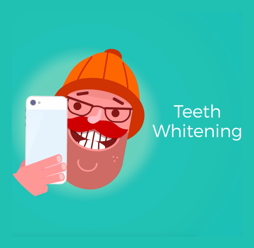 Whitening for an Instagram-worthy smile!