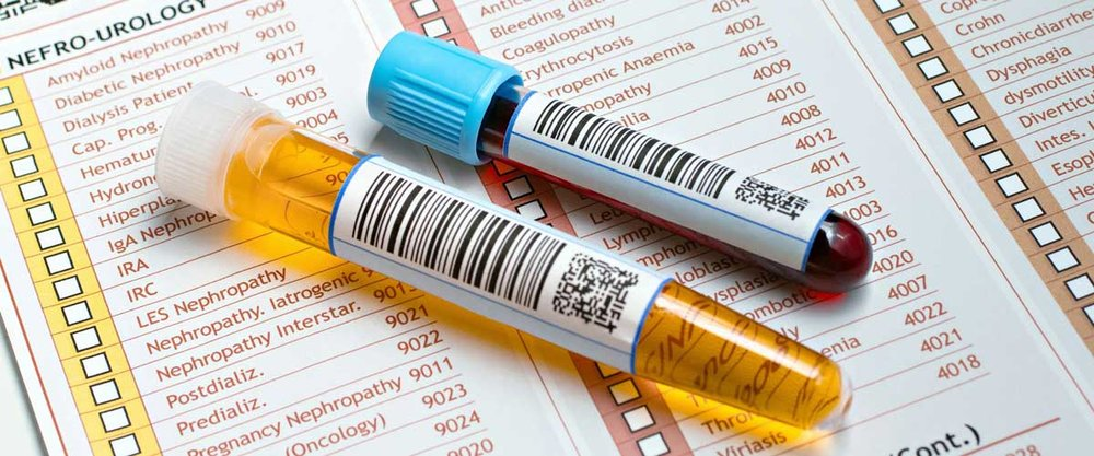 blood and urine tests
