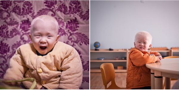 Above:  (Left) Yuan Ming has albinism, when he came into Bethel's care he was just a year old. He has learned to walk and he is now talking a lot. (Right) Jian Ang also has albinism. When he arrived, he was a tiny, weak baby. Now he runs everywhere and does well in class.