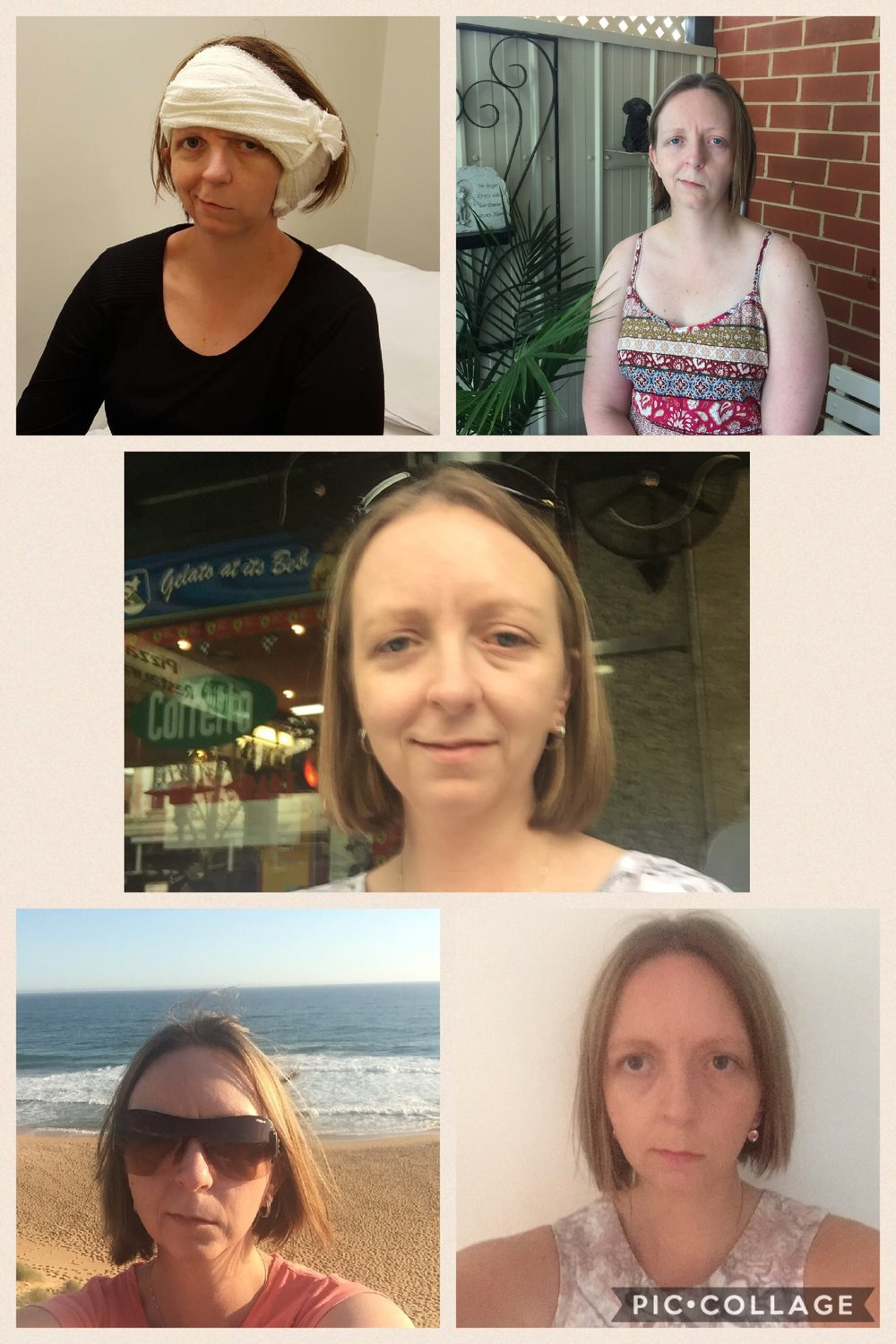 My journey... top left 1 week post op, top right 4 weeks, middle now, bottom left 5 weeks and bottom right 7 weeks.