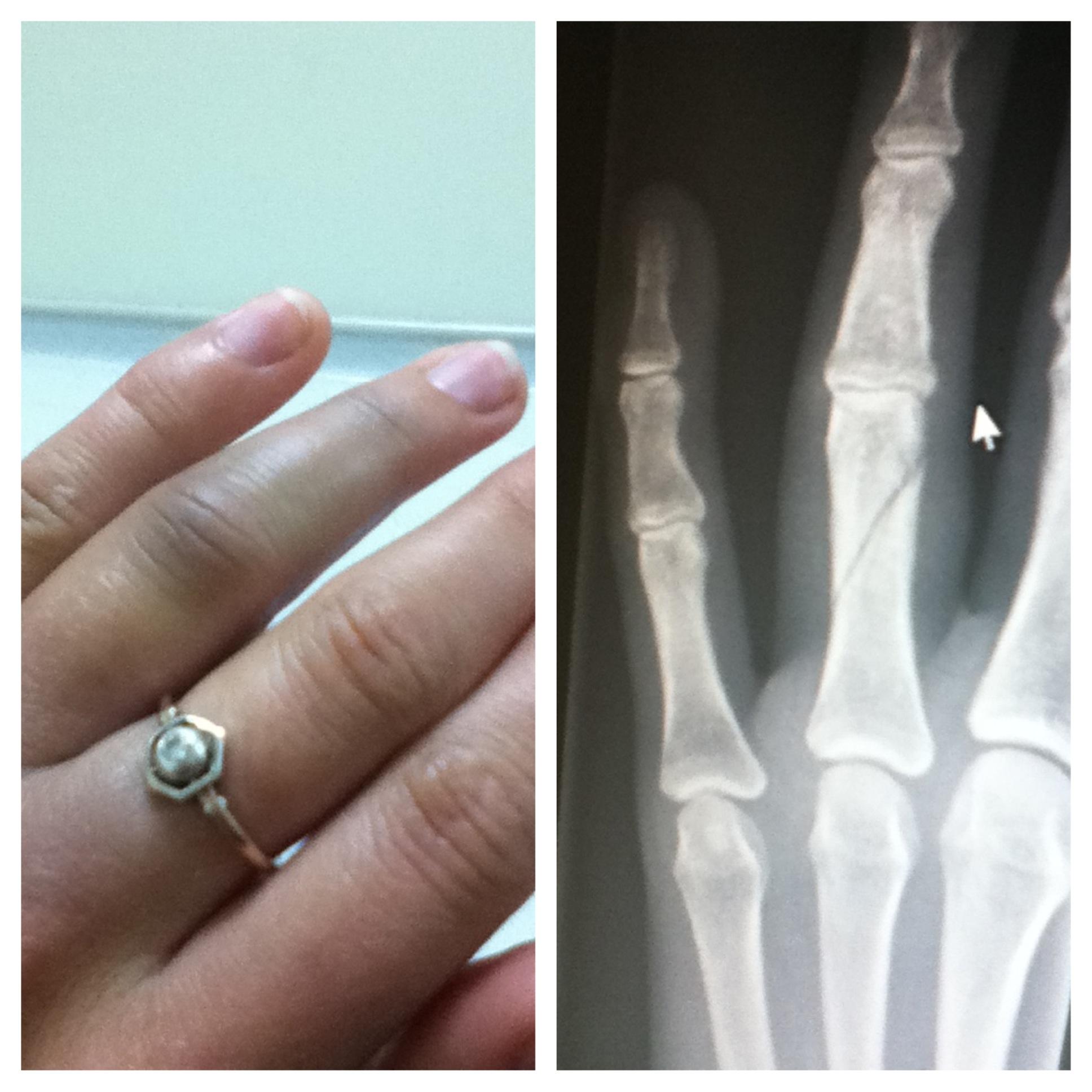 mayaogorzalek broken finger