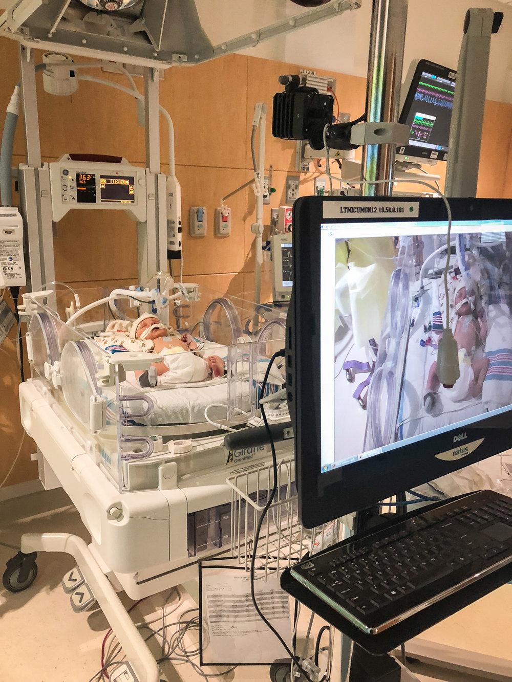 Nicklaus children hospital Miami NKH