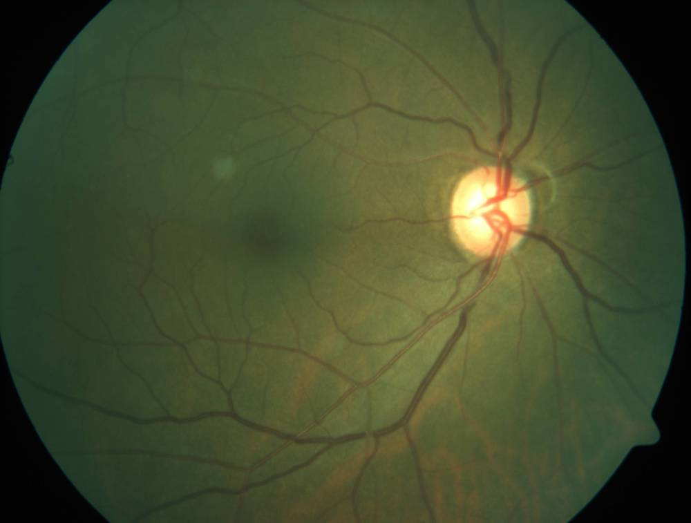 A fundus image taken using state of the art clinical instruments